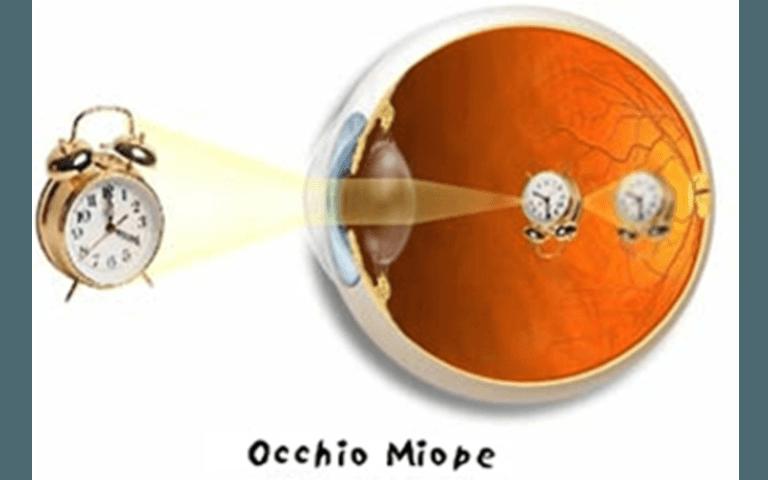 Miopia lenti