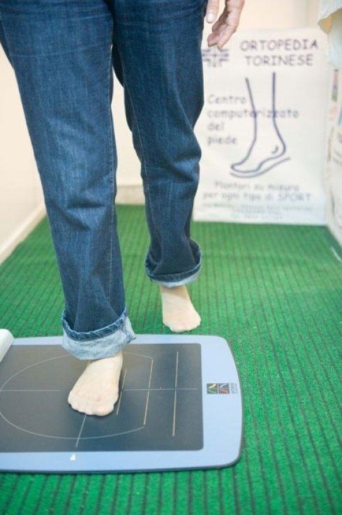 baropodometria computerizzata del piede
