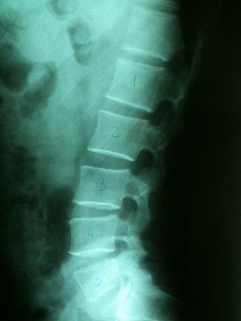 rx cervicale