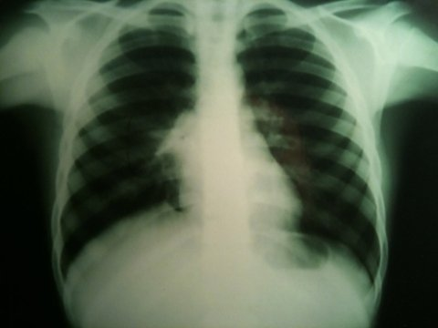 radiografia addominale
