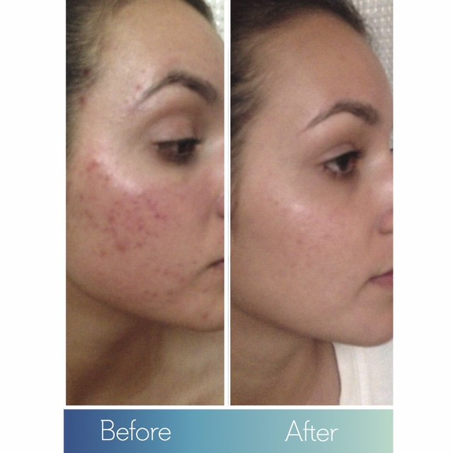 dermodality chemical peel results