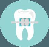 apparecchi ortodontici, ortodonzia invisibile, ortodonzia fissa