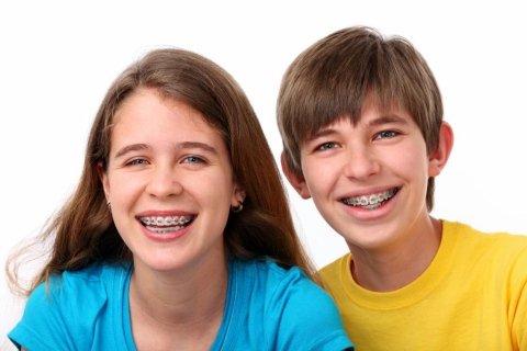 ortodonzia fissa, ortodonzia bambini, apparecchio fisso