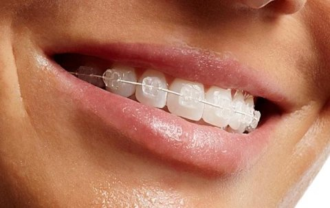 ortodonzia fissa, ortodonzia fissa adulti, ortodonzia estetica, apparecchio fisso