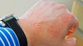 allergie della pelle