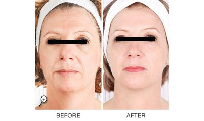 silk beauty clinic before and after service