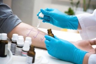 test allergologici