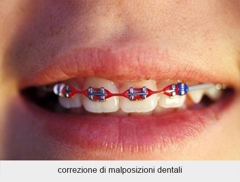 correzione di malposizioni dentali