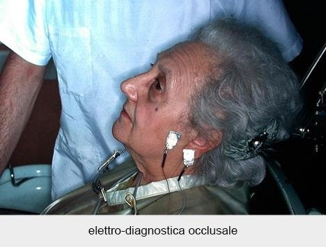 elettro-diagnostica occlusale