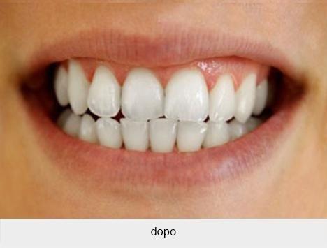 Sbiancamento dentale dopo