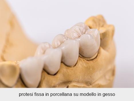 protesi fissa in porcellana su modello in gesso