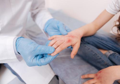 medico con guanti blu che controlla una mano arrossata di una paziente
