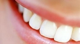 odontoiatria estetica, estetica dentale, sbiancamento dentale