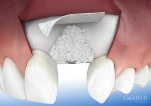 1. Impianti dentali