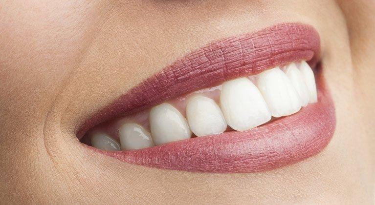 hyalite dental cosmetic dentistry