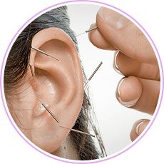 acupuncture for the ear