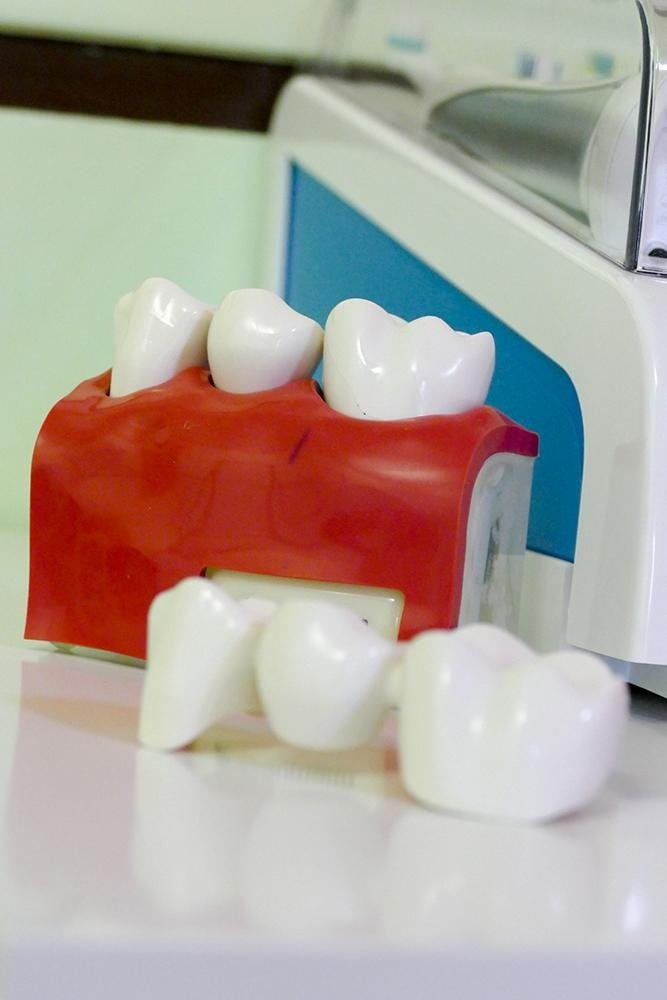 Attrezzature dentistiche all