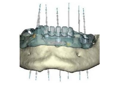 implantologia Massaro DR. Mario