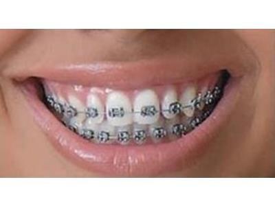 prestazioni dentistiche Massaro