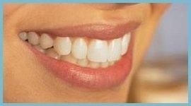 trattamenti sorriso