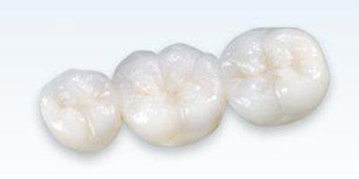 Alexander Heights Dental Care Teeth Crown