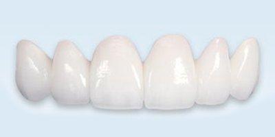 Alexander Heights Dental Care Teeth Veneers or teeth whitening