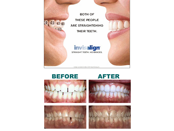 Alexander Heights Dental Care Invisalign Ad