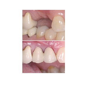 Before and after a dental implant operation in Alexander Heights