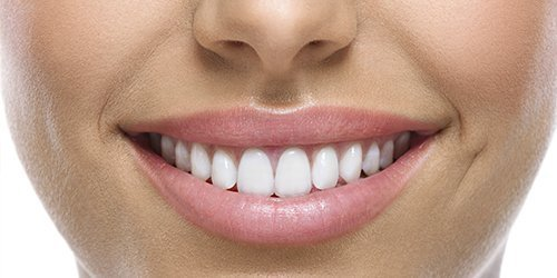 Smiling patient of our dentists in Mirrabooka