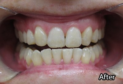 a m dental care smiling after treatment