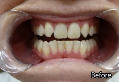 a m dental care smiling before treatment