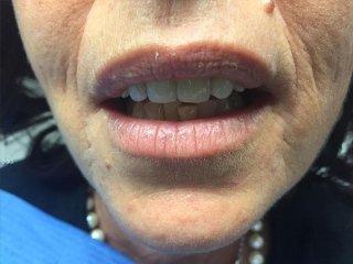 Riabilitazione protesica con faccette dentali