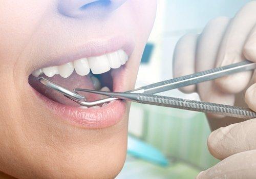 check dentale