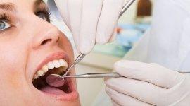 visita dentistica, paradontologia, detartrasi