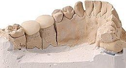 protesi fisse