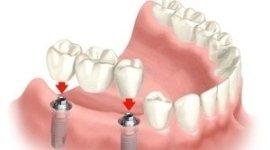 ortodonzia, trattamenti di pulizia, endodonzia
