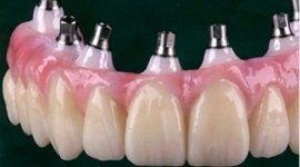 studio dentistico, chirurgia, implantologia