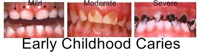 River Rock Dental Hygiene, River Rock, Barrie, Ontario, childrens teeth, baby teeth, cavities