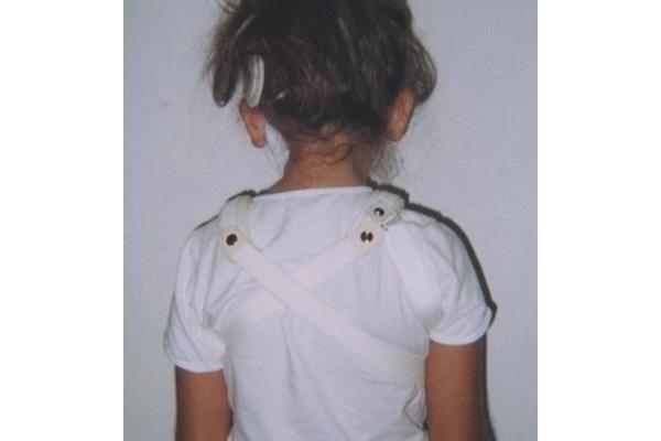 Collare posteriore