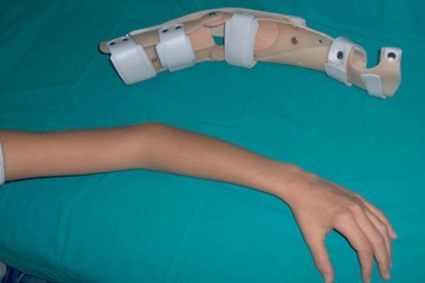 Tutore ortopedico da calco