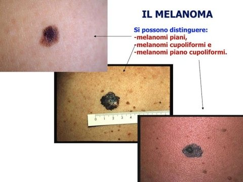 Cura del Melanoma