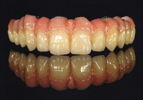 esempio denti