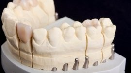protesi su misura, dispositivi per dentisti, protesi mobili in resina