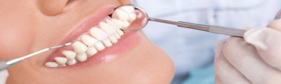 la bocca di una ragazza durante una visita dentistica