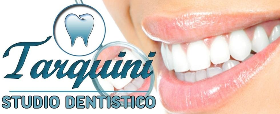 studio odontoiatra rieti, odontoiatria rieti, protesi dentali rieti, implantologia rieti, invisalign rieti