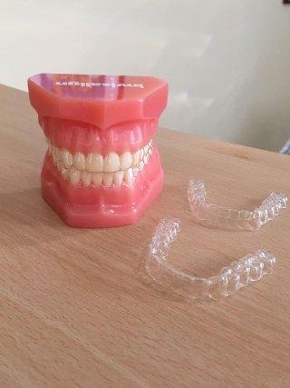 ortodonzia mobile, rieti