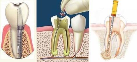 endodonzia, devitalizzazione, rieti