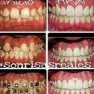 ortodonzia fissa rieti, ortodonzia mobili rieti, ortodonzia trasparente rieti,