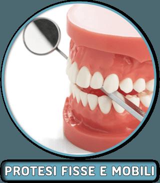 Protesi fisse e mobili