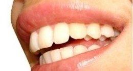 stomatologia estetica, parondologia, estrazione denti